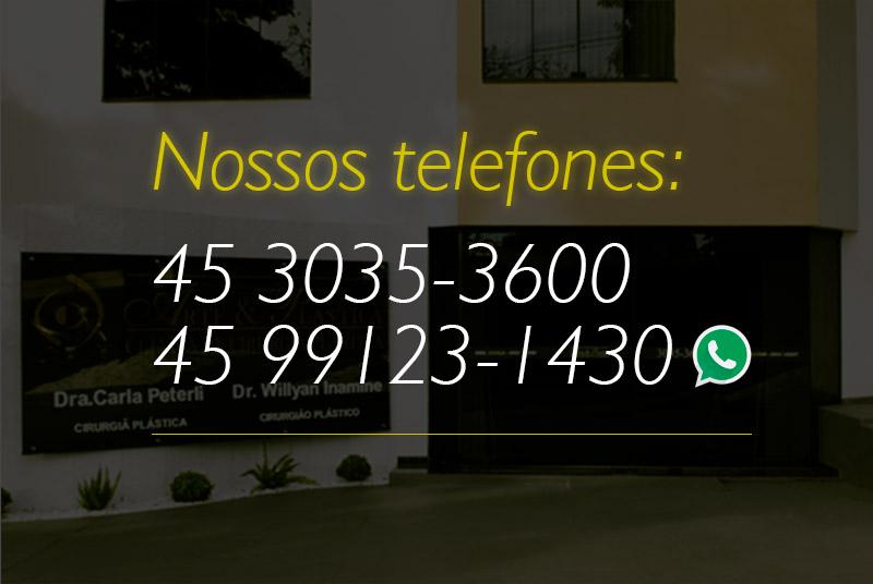 Nossos telefones: 45 3035-3600 e 45 9123-1430