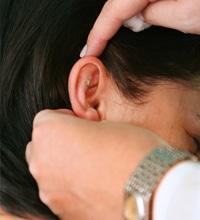 Cirurgia de correção de orelhas em abano em Cascavel - PR
