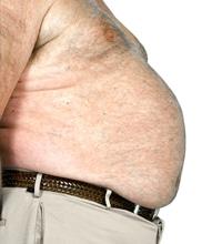 Cirurgia Plástica pós-obesidade em Cascavel - PR